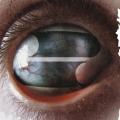Album Crazy Eyes